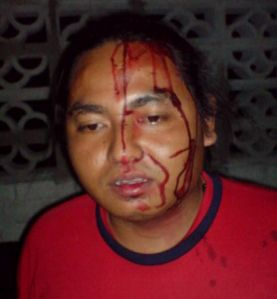 Seorang petugas Pemuda PAS cedera dipukul Samseng UMNO.